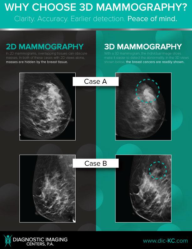 3D_2D-Comparison-Educational-Poster-8.5x11